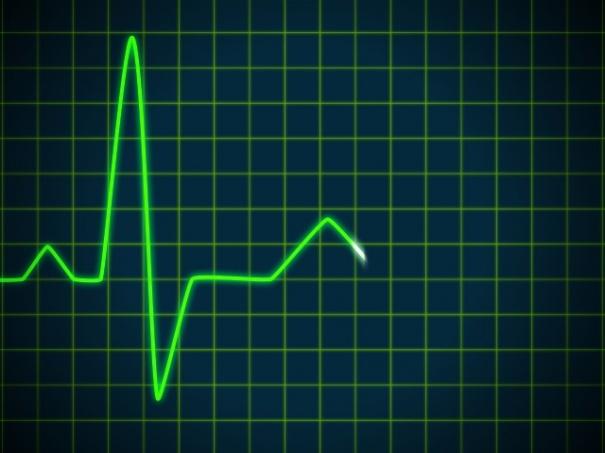 Cardiogram Animation